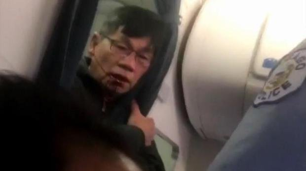 In a video posted online, United Airlines passenger David Dao is shown with a bloody face after he was forced off an overbooked flight on Sun., April 9, 2017, by officers at Chicago O'Hare airport.