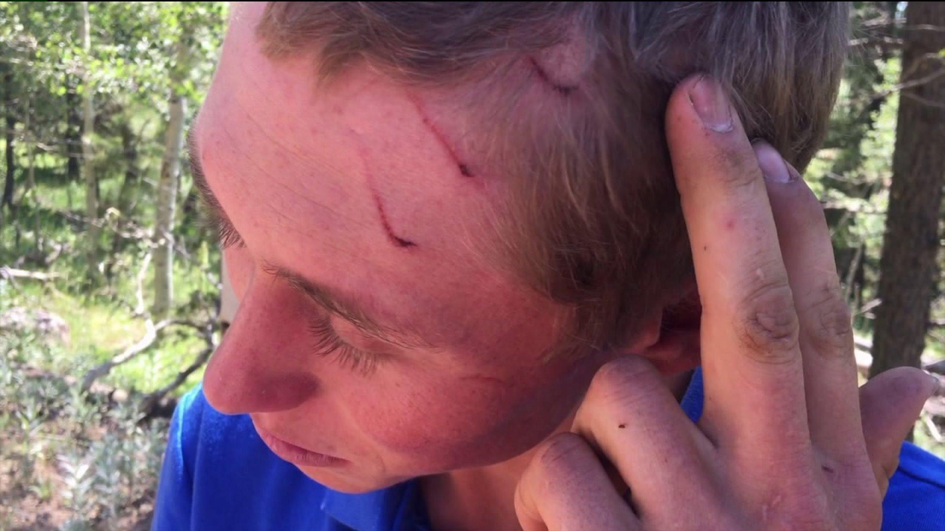 Teen recovering after bear attack while camping near Boulder