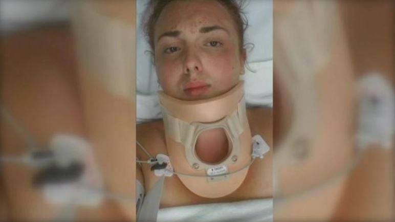 Dakota Kern lies in a hospital bed after being attacked at a Pheonix pool party on Aug. 16. CBS AFFILIATE KPHO