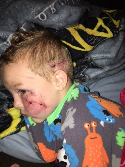 Brady is recovering, however he is having trouble sleeping because of pain from the injuries.  Brady is also going to therapy to deal with the trauma of the attack.